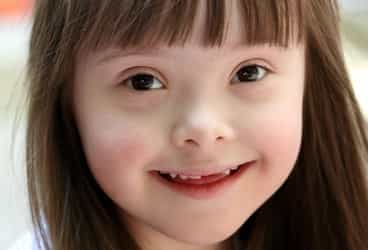 What you should know about Down syndrome