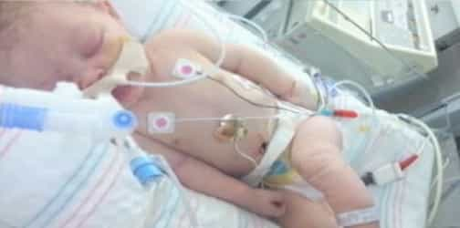 Baby dies 5 days after forceps delivery left her skull fractured