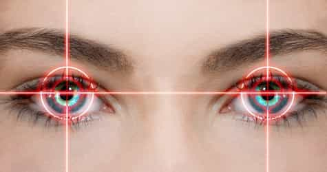 What you need to know about LASIK eye surgery