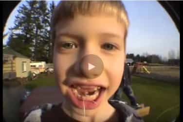 Watch: Here's How to Pull Out A  Loose Tooth with a Rocket!