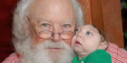 Adorable baby with half a head and skull meets Santa for the first time