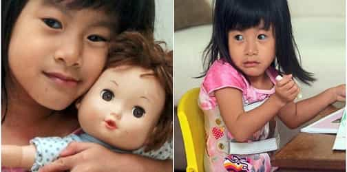 This little girl's bones are so fragile they can shatter like glass