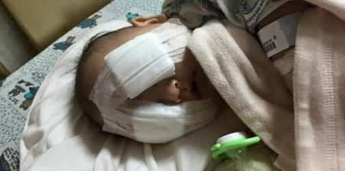 8-month-old baby loses both eyes to cancer, parents refuse donations