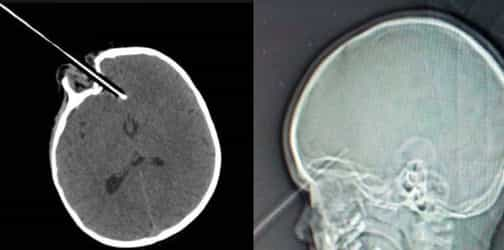 Toddler stabbed in the eye and brain by large pencil