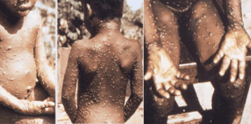 What is monkeypox: Everything you need to know about this rare disease