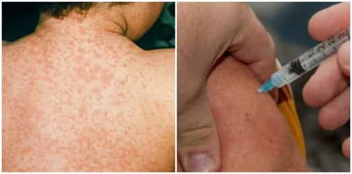 Measles cases in Singapore on the rise, 116 cases reported this year