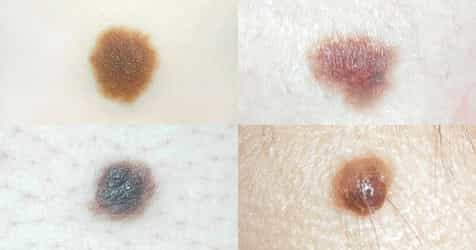 When To Worry About Moles on Your Child: Different Types and Skin Cancer Risks