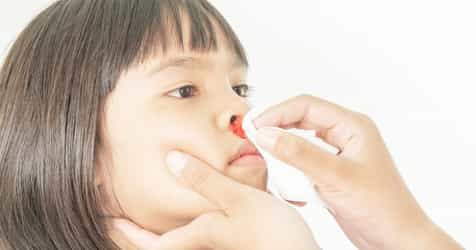 Everything You Need to Know About Nosebleeds in Children