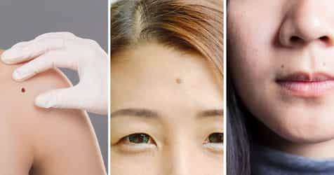 You Are Considered Really Lucky If You Have Moles On These 8 Body Parts