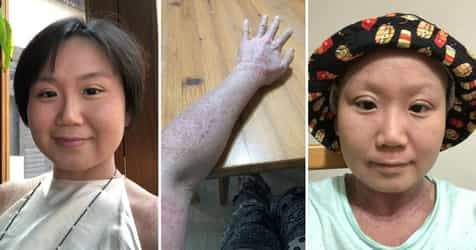 'I Know What I'm Meant To Do In This Life': 28-Year-Old Finds Her Calling Through Debilitating Skin Condition