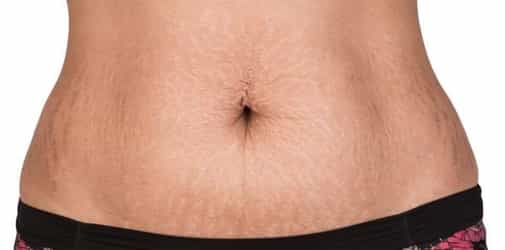 Here's How You Can Get Rid Of Stretch Marks By Using Coconut Oil