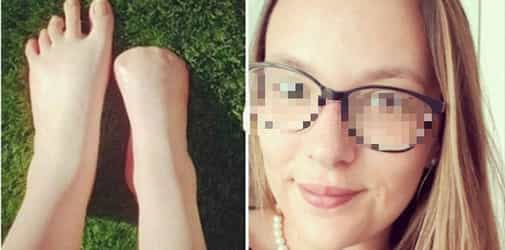 Trying out fish spas leads to ALL of this woman's toes being amputated