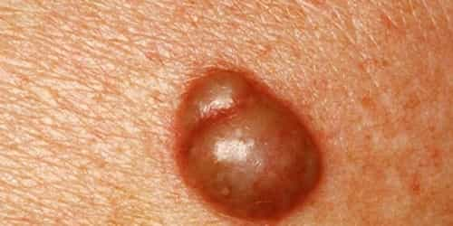 Here is how to get rid of pimples on the vagina