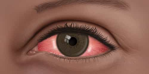 Pink Eye In Kids: How To Treat Conjunctivitis Using Home Remedies