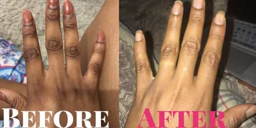 Shea Butter Is All You Need To Clear Your Dark Knuckles...Here's How