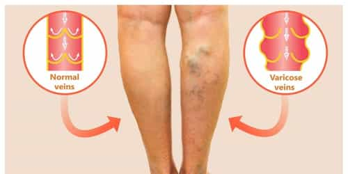 How To Treat Varicose Veins In Pregnancy With Natural Remedies