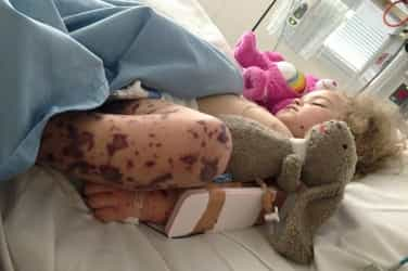 Heat rash turns out to be a deadly infection, now mum warns others
