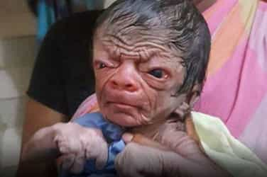 This Bangladeshi newborn has the face and skin of an eighty-year-old!