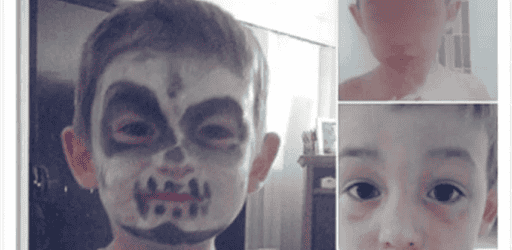 Face painting dangers: Child's face burned by Halloween face paint