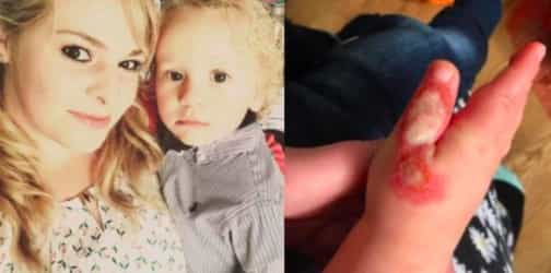 Mum shares warning after toddler is burned by vacuum cleaner in just 5 seconds!