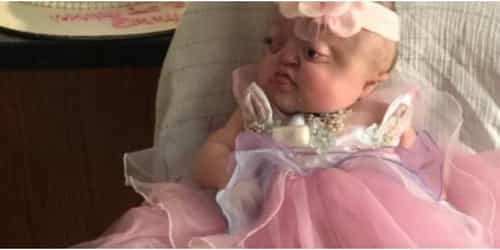Pfeiffer Syndrome: A Rare Genetic Syndrome To Learn About