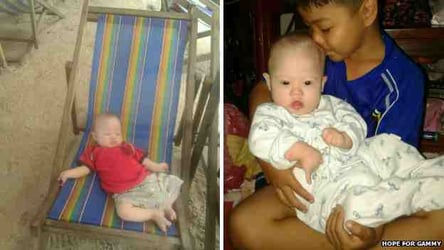 Australian couple abandon baby with Down Syndrome