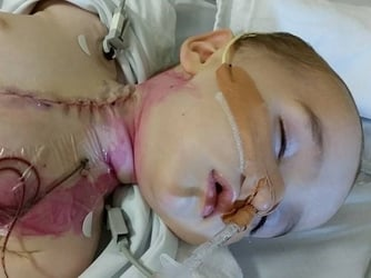 Baby swallowed battery and becomes permanently disabled!