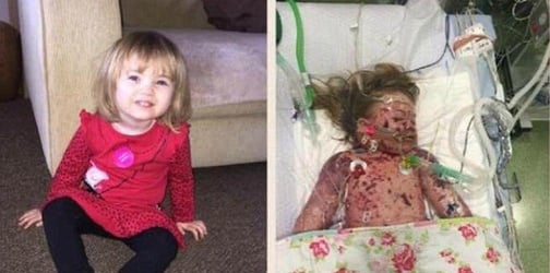 Doctors amputated two limbs to save her life but she still succumbed to the deadly illness.