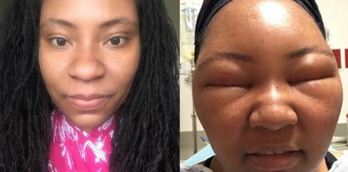 An allergic reaction to henna dye left woman's face distorted