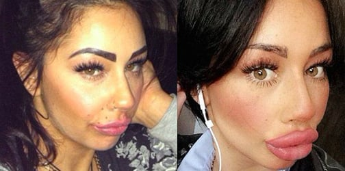 Single mom spends thousands of dollars for lip fillers and wants to go even bigger