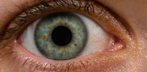 What sorts of habits would really harm your vision?