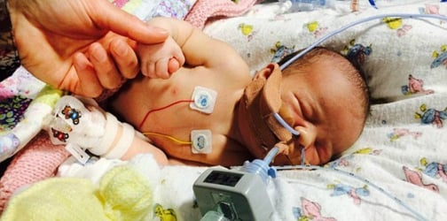 Born without a lung, toddler's heart stapled to her ribcage to stop it from moving in her chest