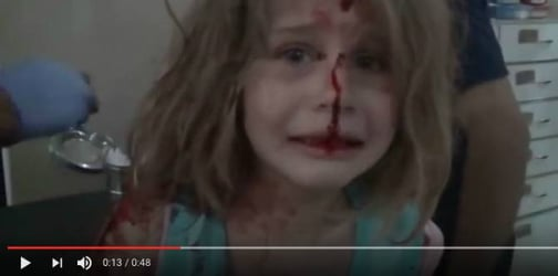 Haunting photo of wounded girl reminds us of the horrors of war
