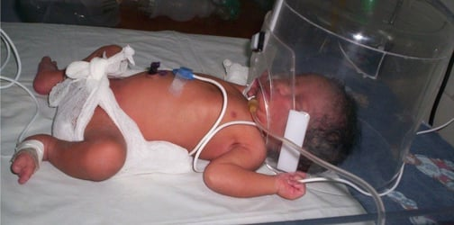 A rare genetic disease has taken 2 of their kids' lives, and now they might lose their youngest
