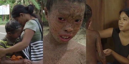 Single mom in Samar bravely raises 3 boys with the same severe skin condition