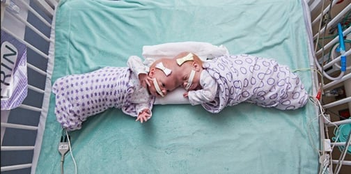 10-month-old conjoined twin girls separated in successful surgery!