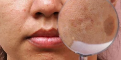5 Facts moms-to-be need to know about melasma