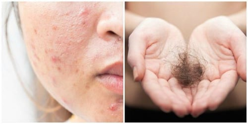 7 post-pregnancy beauty woes and highly effective solutions!