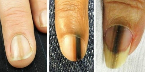 Having this mark on your fingernail can be a possible sign of melanoma