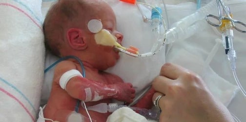 Premature baby problems: 14 Short-term and long-term health issues faced by premature babies