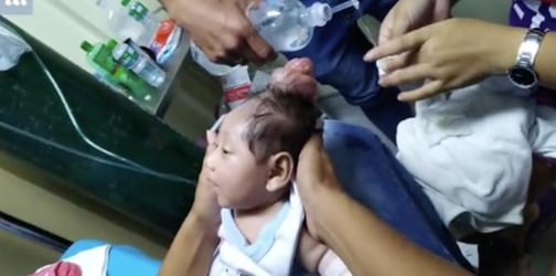 'Unicorn baby' born with horn on his head: What caused this condition?
