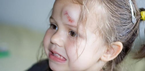 How do I know if my kid has a concussion? A guide for parents