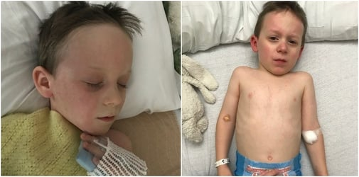 Boy left with heart issues after getting Kawasaki disease