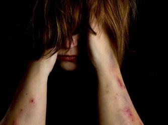 Confessions of a former self-mutilating junkie
