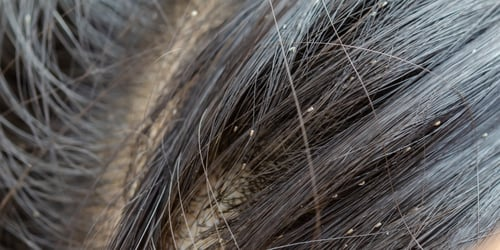 How to Get Rid of Head Lice in Your Child's Hair!