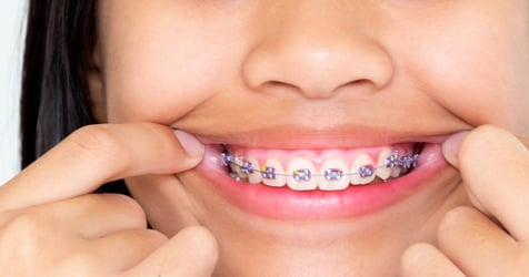 My Child Needs Braces! - Braces For Kids In Singapore