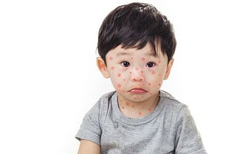 All you need to know about Chickenpox