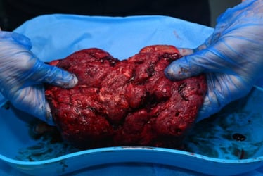 Would you eat your own placenta?