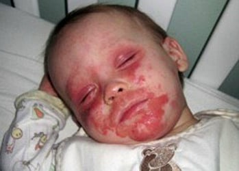 """Little boy with severe eczema begs his mummy, """"Please let me die"""""""