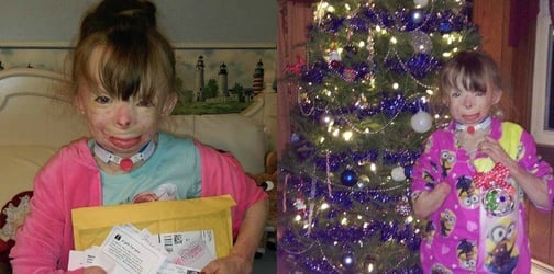 Girl with severe burns only wants Christmas cards for Christmas